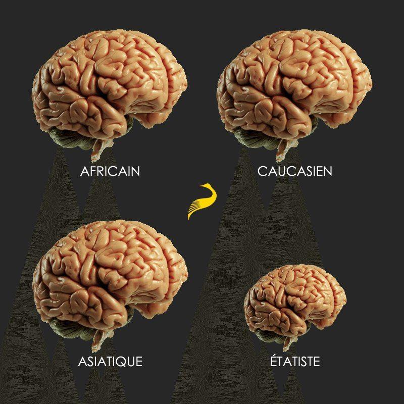 Le cerveau d'un étatiste